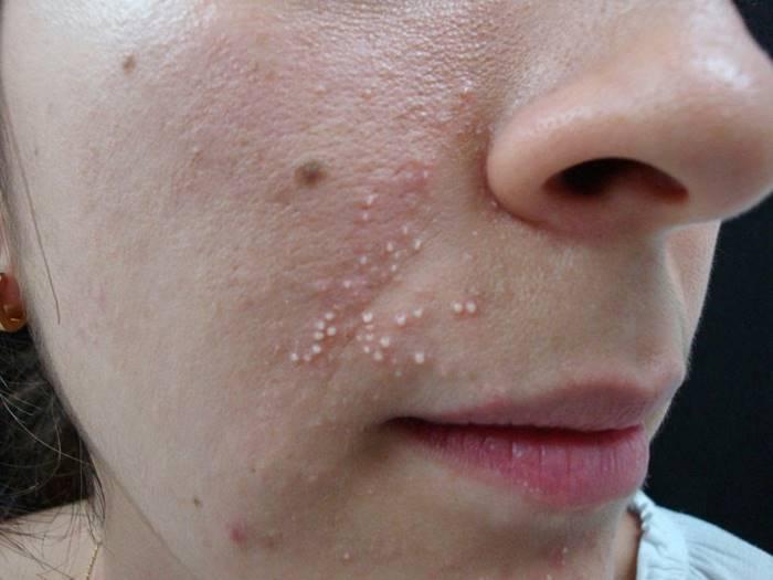 milium na pele